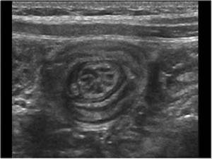 103 Best Images About Intussusception On Pinterest