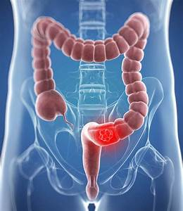 Bowel Cancer Cause  Western High Meat Fatty Diet  U0026 39 Causes