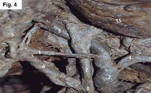Arteria C U00edstica Naciendo A La Izquierda Del Conducto Hep U00e1tico   1