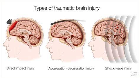 concussions genetic optimization