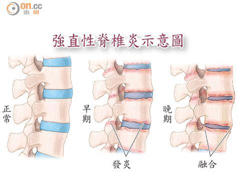 強直 性 脊椎 炎