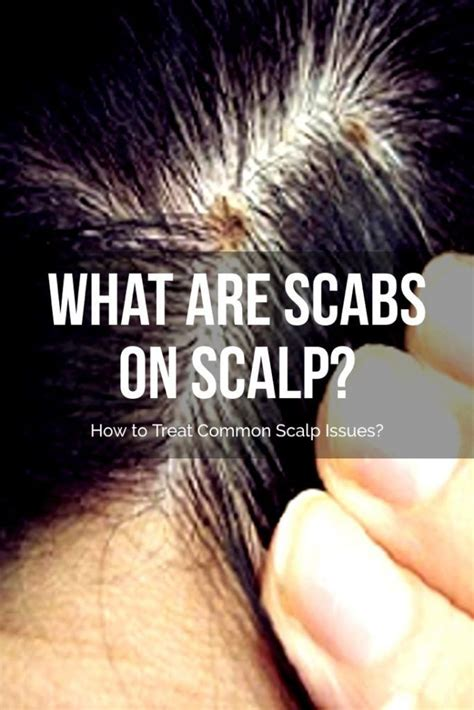 What are Scabs on Scalp? How to Treat Common Scalp Issues