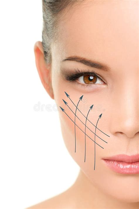 Facelift Anti-aging Treatment On Woman Face Skin Stock