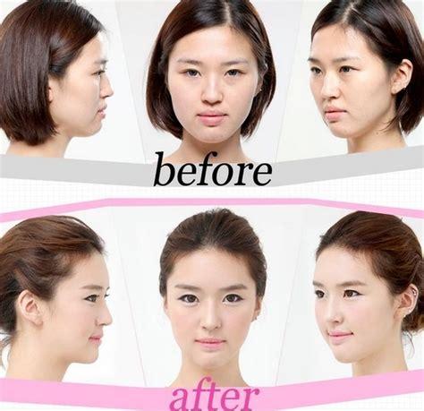 Korean Plastic Surgery Meme - korean plastic surgery 31 pics