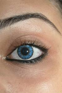 Outbreak Of Preventable Eye Infection In Contact Lens Wearers