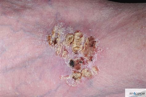 Picture Of Squamous Cell Carcinoma