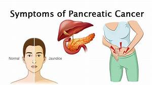8 Symptoms Of Pancreatic Cancer