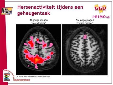 invloed alcohol op hersenen