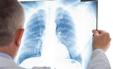clearing  air  copd    ishn