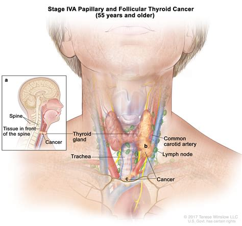 Throat Cancer In Lymph Nodes Pictures To Pin On Pinterest