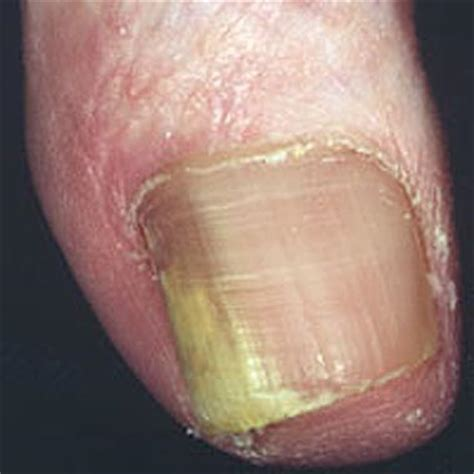 Onychomycosis: Treatment of infection caused by fungi