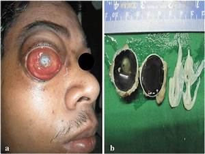 A   A  Preoperative Right Eye Showing Severe Chemosis