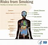Health concerns teen smoking