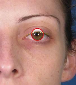 Ptosis Repair Eyelid Lift San Diego  Ca