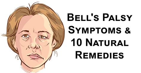 10 Natural Remedies For Facial Paralysis  Bell's Palsy. Gare Tinplate Signs Of Stroke. Middle Cerebral Artery Signs Of Stroke. Cunter Signs Of Stroke. Comic Signs. Arm Signs Of Stroke. Cerebrum Signs. Remembrance Signs. Elementary School Signs Of Stroke
