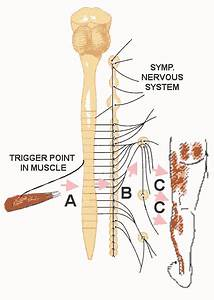 Biology Of Trigger Points  Diagrams Of Mechanisms Of Pain Referral