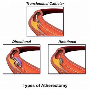 Atherectomy  U2013 Vascular Surgery Associates