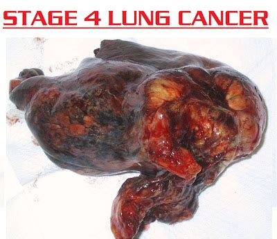 About Lung Cancer 3000. Gantt Chart Template For Excel 517109. Medical Ppt Slides Free Download. Sample Template Of Resume Template. Professional Resume Format 2018 Template. Excel Fantasy Draft Board. Vehicle Lease Agreement Template. Tips On How To Write A Resumes Template. Managed Services Contract Template