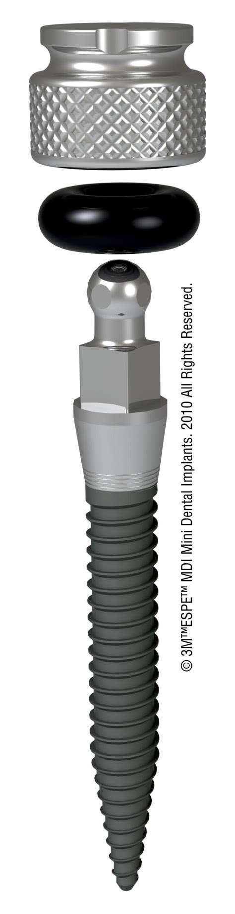 dental implant options  tampa fl weninger dentistry
