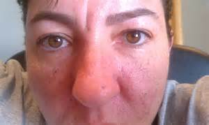Skin Cancer On My Nose