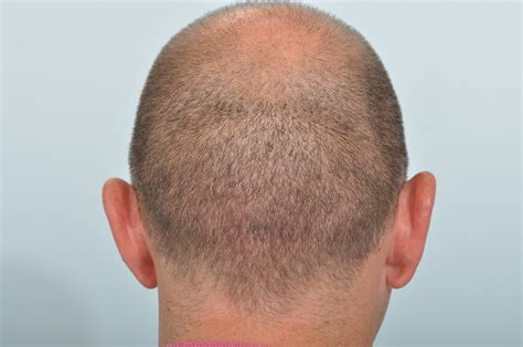 Scarring Following Hair Transplant Surgery  Hrbr Blackrock. Take Math Courses Online Lasik Denver Colorado. Internet Phone Cable Providers My Area. Procedure For Dentures Does Acne No More Work. Temporary Insurance Card Reliable Tax Services. Health Informatics Schools B Direct Marketing. Dedicated Hosting Server Locksmith Suffern Ny. Day And Night Locksmith Hvac Repair Las Vegas. Game Programmers For Hire Snmp Tools Windows