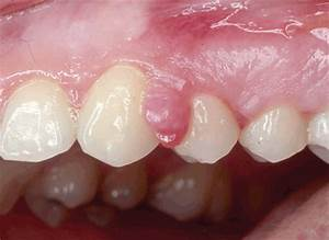 Similar appearances in oral pathology: Is it a peripheral ...