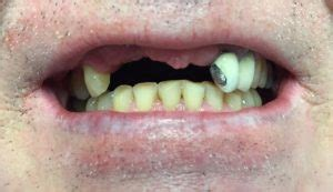 partial dentures beforeafter dr gentry