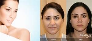 Worried about Nose Shape? Go for Rhinoplasty!   eVaidya ...
