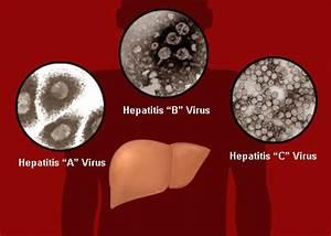 hepatitis, hepatitis viruses, hepatitis a, hepatitis b, hepatitis c ...  Hepatitis Infections