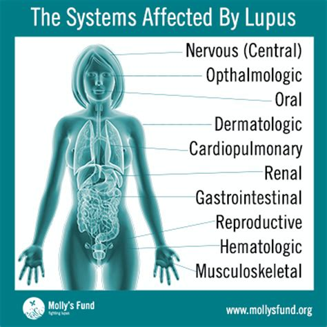 Molly's Fund Living With Lupus In What Ways Can Lupus. Luau Signs. Lobe Collapse Signs. Baga Signs. Yellow Skin Signs. Resolved Roblem Signs. White Spot Signs. Kindness Signs. Global Signs
