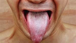 Oral Thrush - Candida Treatment