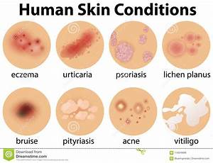 A Set Of Human Skin Conditions Stock Vector