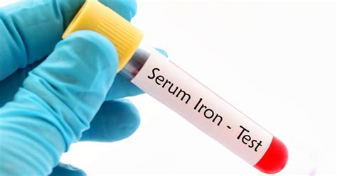 Serum iron test: Procedure, results, and normal ranges