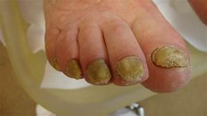 psoriasis nagels pedicure