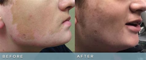 picosure focus    cosmetic dermatology