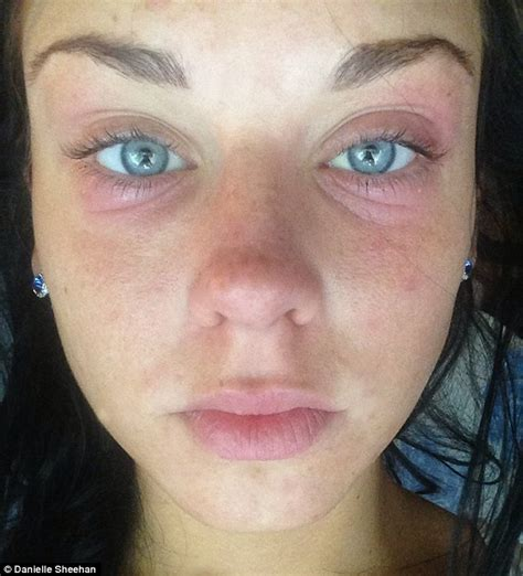 Best Freckle removal Cream (with