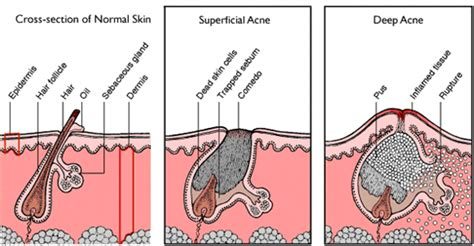Skin Hair Nail, Vitaminbeauty, For a beautiful and