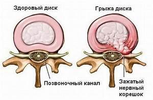 Мазь лечение артроза ультразвуком