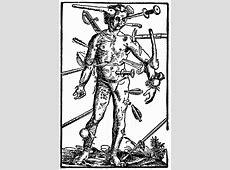 DIAGRAM >> Bloodletting Man