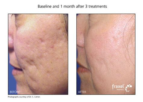 Led, acne, treatment, reviews - online Shopping, led, acne, treatment, reviews