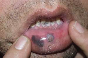 Case Report  Mucosal Melanoma Of The Lip And The Cheek