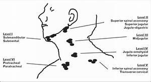 Schematic Illustration Of Levels Of Cervical Lymph Nodes