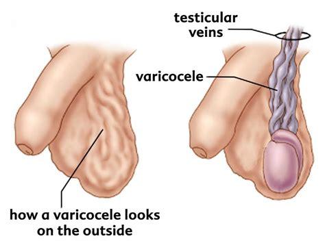 varicocele dott alberto gritti urologo