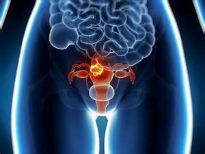 Cancer uterin - factori favorizanti, simptome, evolutia dupa operatie