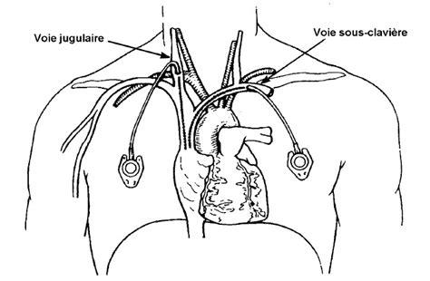 pose de perfusion sur chambre implantable pose de perfusion et injection sur cip récap 39 ide