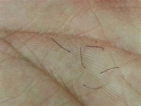 hair loss hair transplant and hair restoration advice