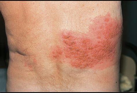Pictures of Viral Skin Diseases and Problems - Varicella