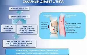Форум сахарный диабет 2 типа лечение