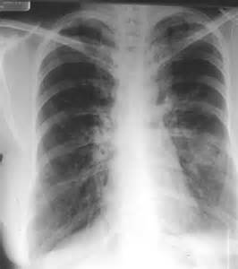 Asthma Lung X-ray
