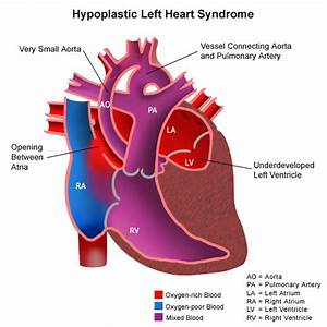 Other Congenital Heart Defects